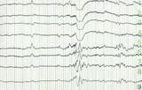 electro-encephalogramme poster