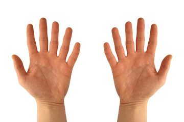 Hands with six fingers