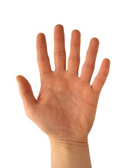 Hand with six fingers