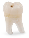 Human wisdom tooth poster