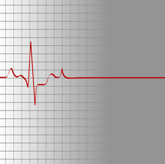 grid with heart beat and then flatline - death