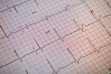 Normal ECG (EKG) poster