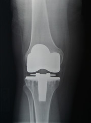 Knee Replacement X-ray AP view