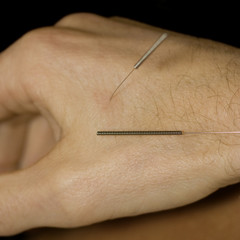 Man with acupuncture needles in hand - close-up - adobe RGB