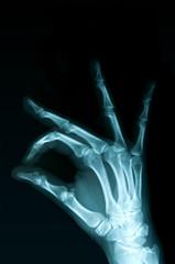 Radiografia della mano