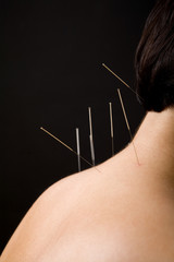Acupuncture needles on back of a young woman