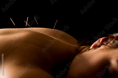 Acupuncture - 7674763