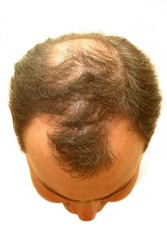 male head with hair loss symptoms