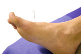 Man with acupuncture needle in foot poster