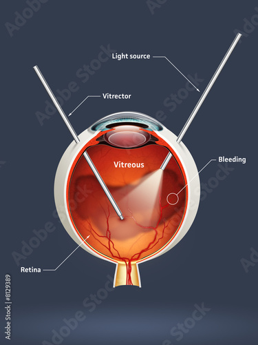 Vitrectomy (eye surgery)