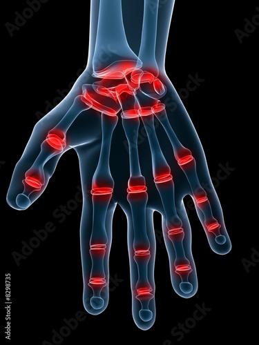 gelenkschmerzen der hand