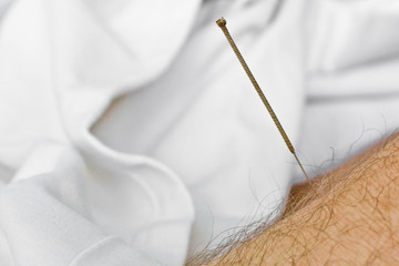 Acupuncture needle in arm (2)