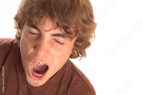 teenage boy having great big yawn with braces on his teeth