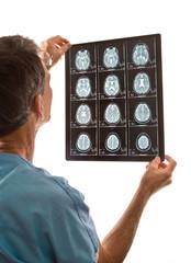 Doctor viewing MRI scans