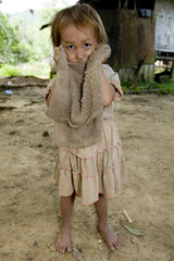 Hmong Mädchen mit schmutzigem Tuch, Laos