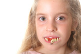 pretty little girl with ugly teeth (copy space left) poster