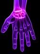 hand mit gelenkschmerz
