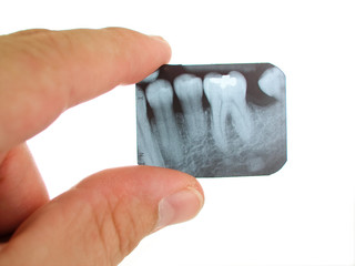 X-ray being examined by a dentist.