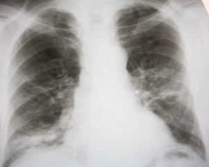 Septic double-sided pneumonia. 100% confirmed diagnosis