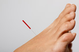 Acupuncture needle in foot poster