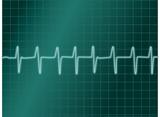 electro cardiogramme poster