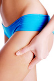 Cellulite on human legs poster