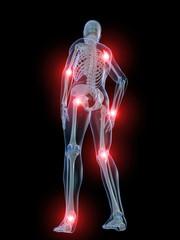 skelett illustration mit schmerzenden gelenken