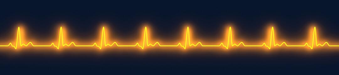 EKG Puls