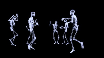 Group of human skeleton dancing on black background in x-ray