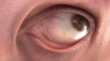 Disturbing Eye