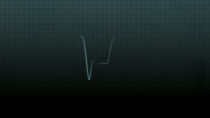 Electro cardiogram