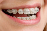 Fototapety Braces on teeth