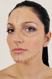 woman facial surgery correction poster
