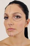 woman facial surgery correction