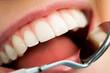 Mouth checkup
