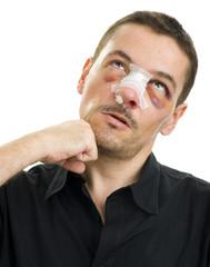 broken nose post operation