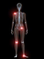 transparenter körper mit schmerzenden gelenken