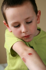 bleeding injured boy