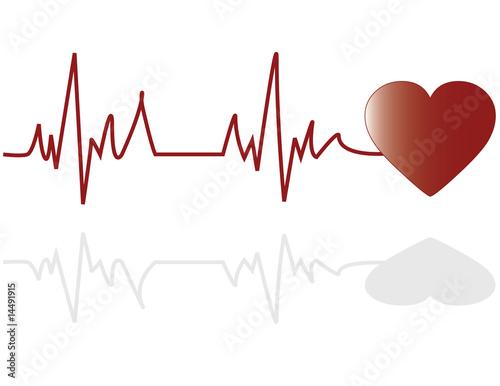 Illustration of an electrocardiogram (ECG)