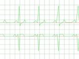 Normal Heart Rhythm poster