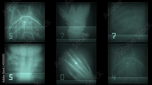 Xray of human bones - digital animation