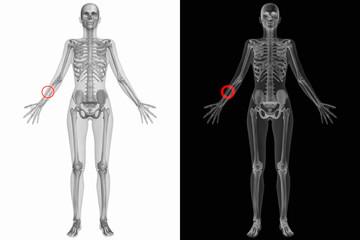 Anatomischer Körper mit gebrochenem Radius(Knochen)