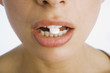 Woman's mouth with pill in teeth