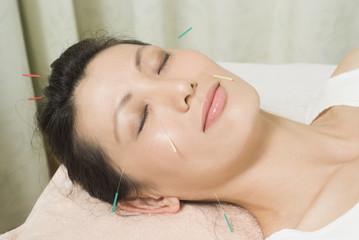 女性の頭と顔や首に美容鍼