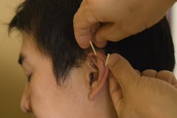 男性の耳に鍼治療