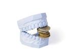 Zuschuss zum Zahnersatz