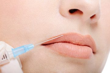 Cosmetic injection in the female lips