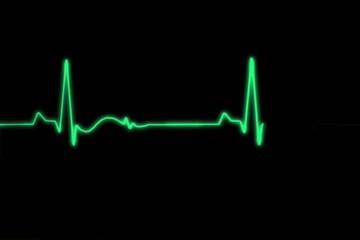 Electrocardiogram (ECG) green
