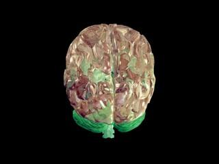 Brain - loop close up