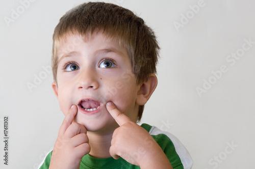 Leinwanddruck Bild bambino con mani in viso